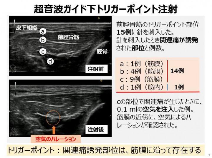 参照:小林只 他「筋筋膜性疼痛症候群の病態と形態学的特徴 エラストグラフィー超音波診断装置による検討 第119回日本解剖学会総会・全国学術集会(2014年3月28日)