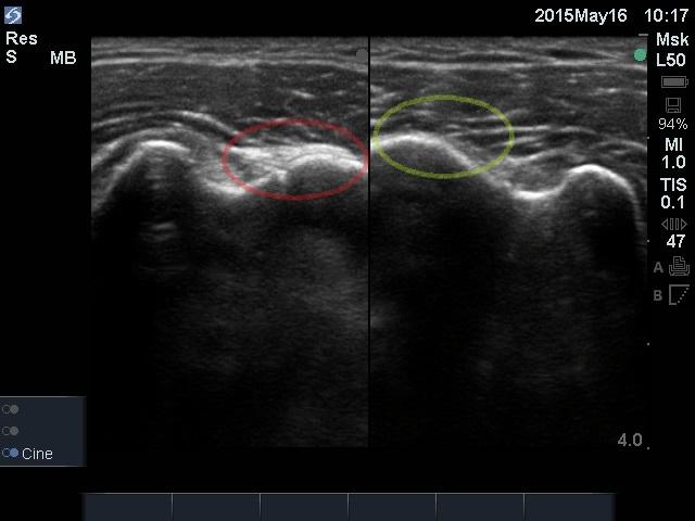 左が患側、右が健側になります